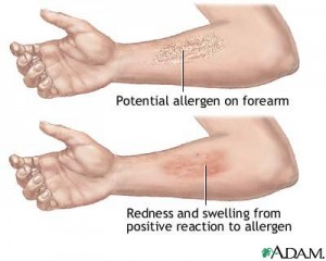 positive-reaction-to-allergen