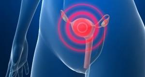 Жените ги игнорираат: Ова се првите два симптоми за рак на јајниците