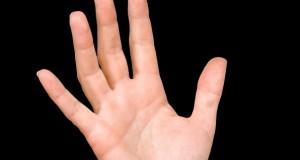 Имате ладни раце? Веднаш одете на лекар – може да ја имате оваа болест