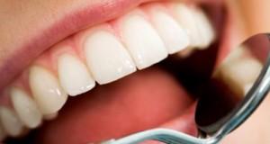 Нема повеќе пломби – нов лек помага забите да се излечат сами
