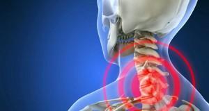 Коскени шилци – еве кои се симптоми и како да ги спречите