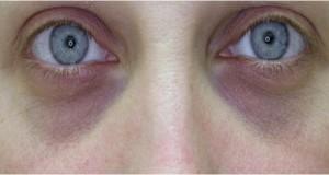 Очите навестуваат мозочен удар – еве на што да внимавате