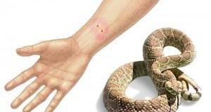 Што да сторите ако ве нападне змија
