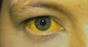 Лек за жолтица – лечи за 7 дена
