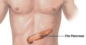 Ракот на панкреас зема се поголем замав