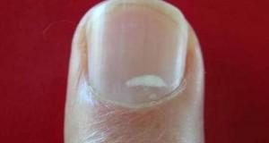 Зошто се појавуваат белите дамки на ноктите и што значат?