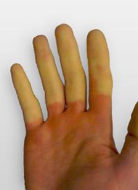 На минус 20 и кожата може да се откорне или до мрзнатини кои водат до ампутација