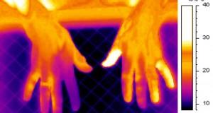 Студени раце и стапала? – Тие укажуваат на 4 здравствени проблеми