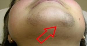 Епилација дома! –  отстранате ги влакната на лицето