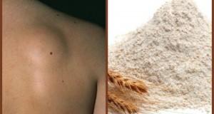 Природно отстранете го масното ткиво