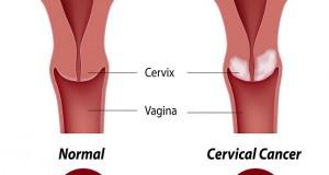 АНТИБЕБИ ПИЛУЛИ, ЦИГАРИ… Ризик фактори за појава на рак на грлото на матката