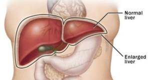 Знаци кои покажуваат дека вашиот црн дроб е полн со отрови