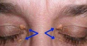 Имате ли вакви израстоци на очите? Еве зошто се појавуваат тие