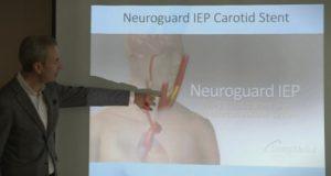 Кардиологот Кедев за прв пат во светот направи стентирање за превенција од мозочен удар